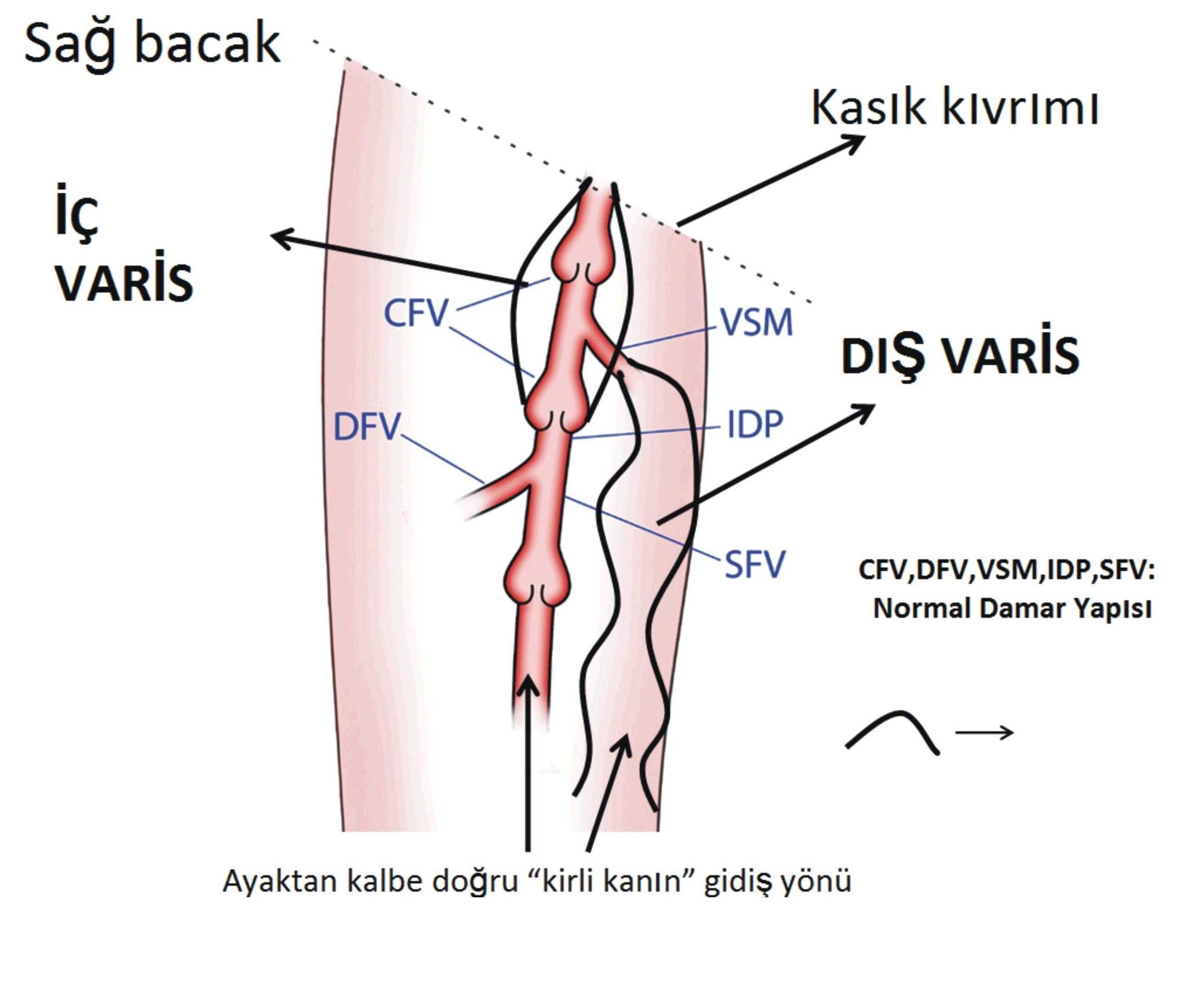 Meslek hastalığı: Varis