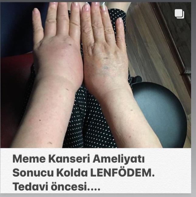 prof dr ahmet akgul meme kanseri